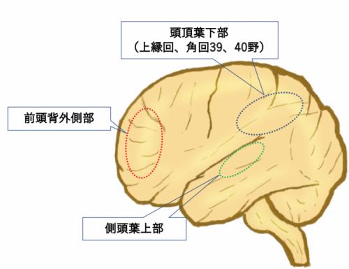 脳卒中についてのイメージ