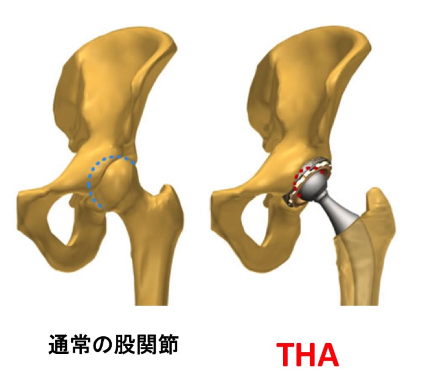 術 置換 人工 脱臼 骨頭